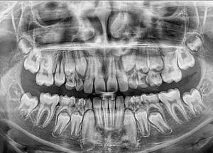 для чего нужен панорамный снимок зубов