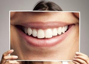 как проводится фотоотбеливание зубов