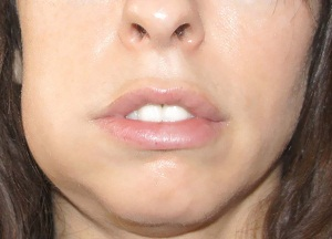 что делать, если опухла щека, а зуб не болит
