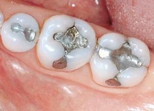 какие бывают пломбы для зубов