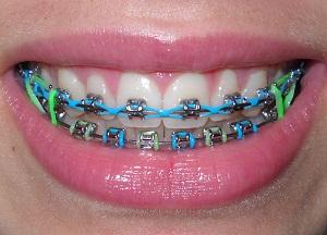 для чего необходимы скобы для зубов