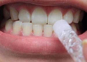 как пользоваться гелем для отбеливания зубов