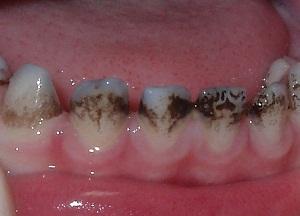 как избавиться от черного налета на зубах у ребенка