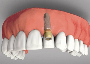 обзор производителей зубных имплантов