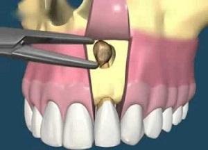 для чего проводится резекция верхушки корня зуба