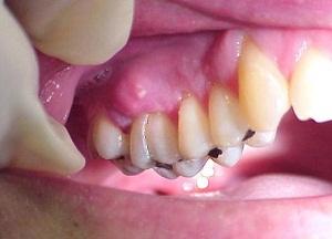 как лечить воспаление надкостницы верхней челюсти