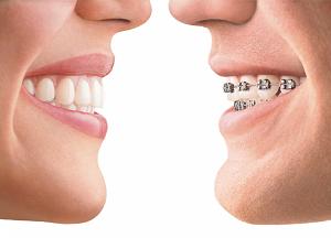 способы выпрямления зубов без брекетов