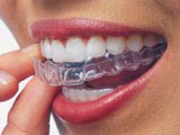 выпрямить зубы без брекетов