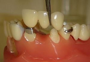 вставить зубы металлокерамика цена фото