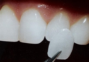 Зубные протезы все виды