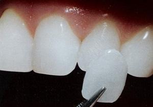 вставить зуб на место удаленного цена