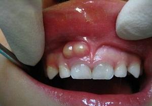 Воспаления во рту чем лечить