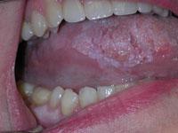 Скайсы на зубах что это