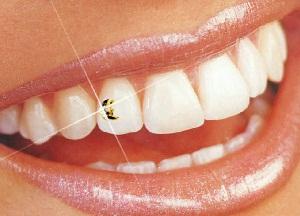 как устанавливают скайсы на зубы