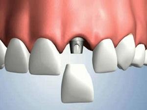 имплантация зубов виды и цены