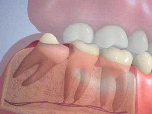 зуб мудрости симптомы