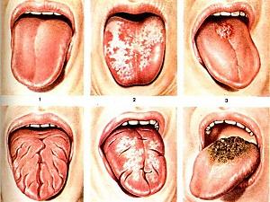глоссит лечение препараты