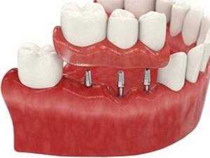 сколько стоит имплантация зубов