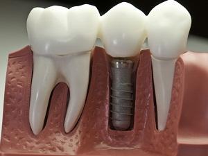 зубные импланты цена