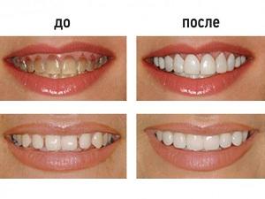 люминиры на зубы фото до и после