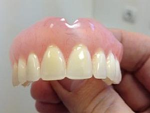 зубные протезы съемные из акриловой пластмассы отзывы