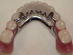 шинирование зубов фото до и после