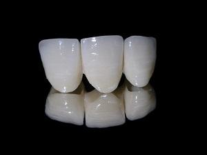 какая коронка лучше на жевательный зуб