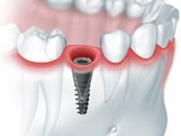 имплантация зубов противопоказания