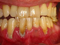 отбеливание зубов в домашних условиях без вреда для эмали и зубов
