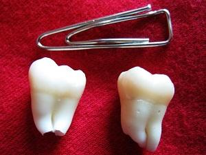вырвать больной зуб больно