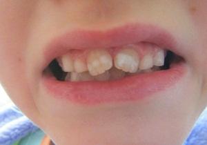 как избавиться от пятен на зубах