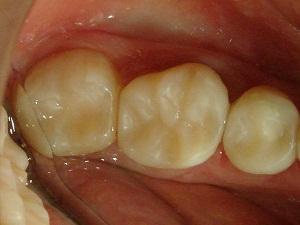 реставрация зуба стоимость