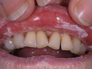 кандидозы полости рта симптомы
