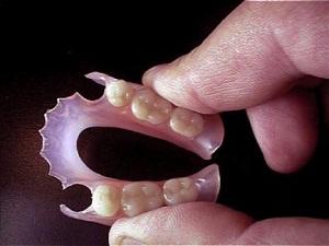 нейлоновые зубные протезы отзывы и цена