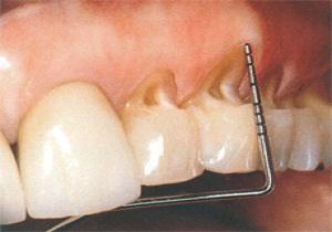 клиновидный дефект зубов фото