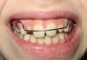 пластина для выравнивания зубов цена