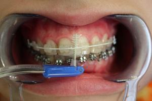 купить ершики для чистки зубов