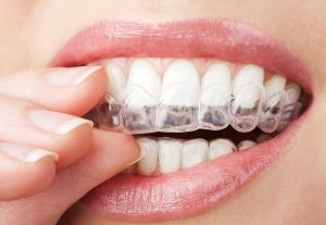 капа для выравнивания зубов отзывы