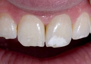 белые пятна на молочных зубах у ребенка