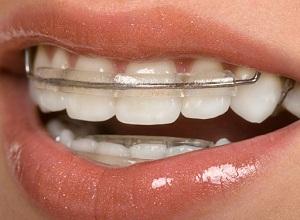 пластины для выравнивания зубов у детей цена