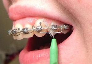 ершики для зубов цена