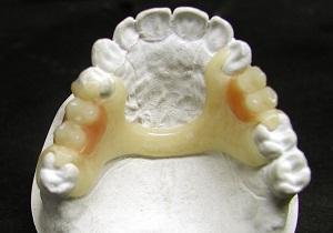 ацеталовые зубные протезы технология изготовления