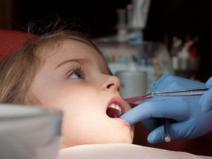 лечение пульпита у детей молочных зубов