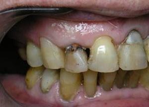 удаление зубного камня отзывы