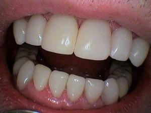 стоимость реставрации зубов