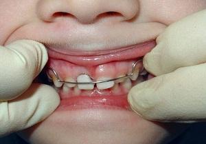 пластины для зубов