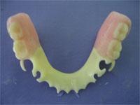 ацеталовые зубные протезы