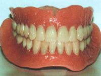 протезировании при большом отсутствии зубов