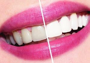 фотоотбеливание зубов