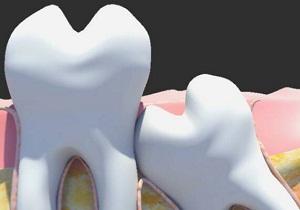 зуб мудрости фото